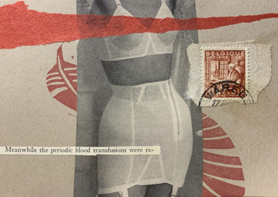 periodic blood transfusions